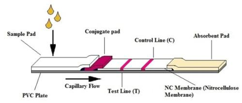 procedura-detectia-fungica-antigen-criptococic-dynamiker