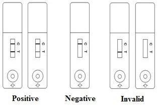 rezultat-detectia-fungica-antigen-criptococic-dynamiker